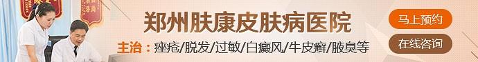 郑州肤康皮肤病研究院-牛皮癣患者平时应该怎么护理