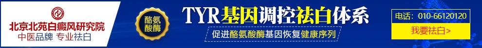 北京北苑白癜风研究院