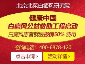 北京北苑白癜风研究院涨知识:脸部白癜风原来是这么回事