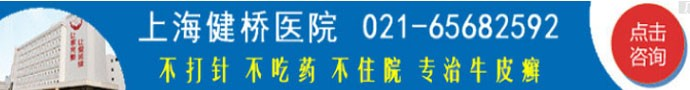 上海健桥医院-清除牛皮癣需要注意哪些问题?
