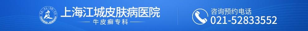 上海江城皮肤病医院牛皮癣