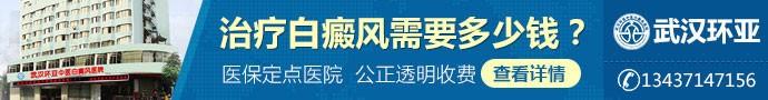 武汉环亚中医白癜风医院-白癜风可能由哪些因素引起