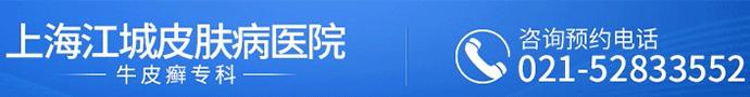 上海江城皮肤病医院牛皮癣-手部牛皮癣该怎么护理