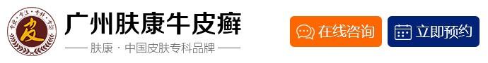 广州荔湾区肤康皮肤科医院-广州治疗银屑病效果怎么样?