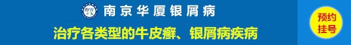 南京华厦银屑病-牛皮鲜患者能不能喝酒-其中有哪些危害