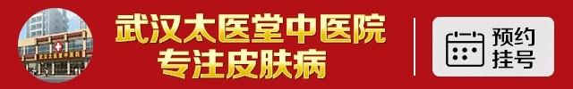 武汉太医堂中医院-武汉太医堂治疗青春痘大概多少钱