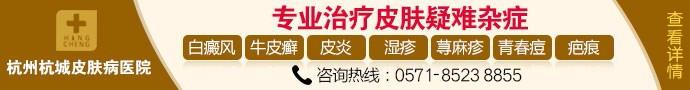 杭州杭城皮肤病医院-杭州杭城皮肤病医院讲解白癜风患者平时的禁忌有哪些