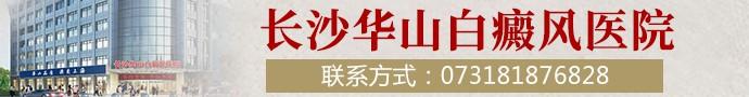 长沙华山白癜风医院-手上有白斑该如何治疗?