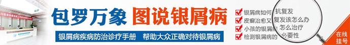 成都银康银屑病医院-四川凉山专门治疗牛皮癣的医院如何