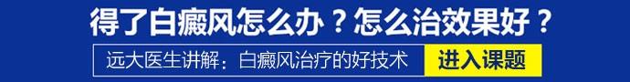 西安远大中医皮肤病医院-白癜风怎么治疗恢复的快些