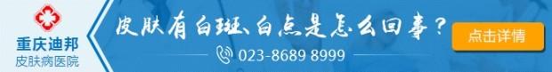 重庆迪邦皮肤病医院-白癜风的常见发病部位