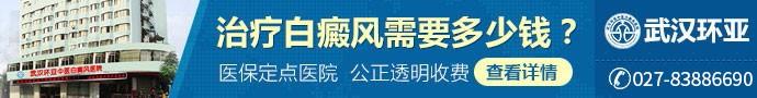 武汉环亚中医白癜风医院-青少年孩子白癜风病情加重原因是什么