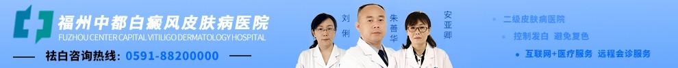 福州中都白癜风医院