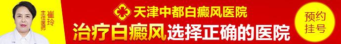 天津中都白癜风医院-白癜风治疗不当会怎样呢?
