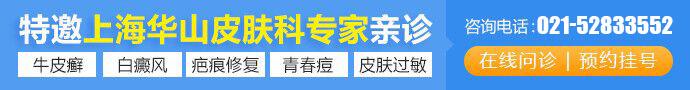 上海江城皮肤病医院-上海皮肤病医院哪家比较好