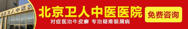 北京卫人中医医院-银屑病饮食怎么注意