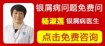 郑州治疗牛皮癣哪里医院专业