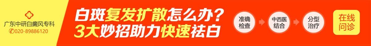 广州白癜风医院在线问诊