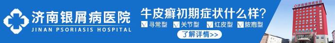 济南银屑病医院-山东牛皮癣医院的排名 暑期活动爆热来袭